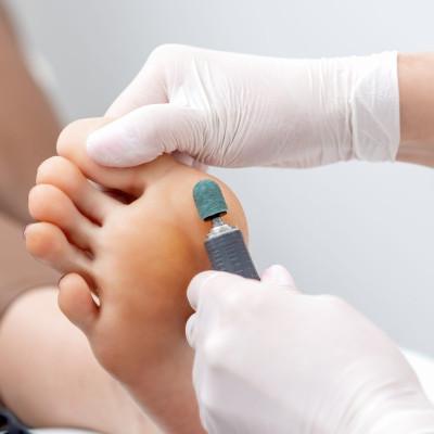 Peeling feet pedicure procedure on foot